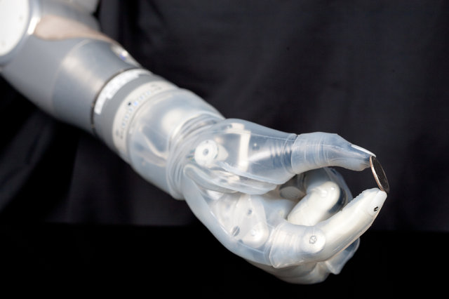 Mind-Controlled Prosthetic Arm